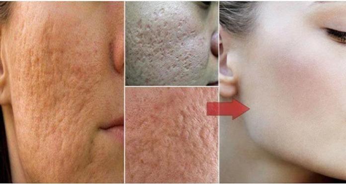 Όταν πρόκειται για την περιποίηση του δέρματος, προσπαθούμε πάντα να κάνουμε…