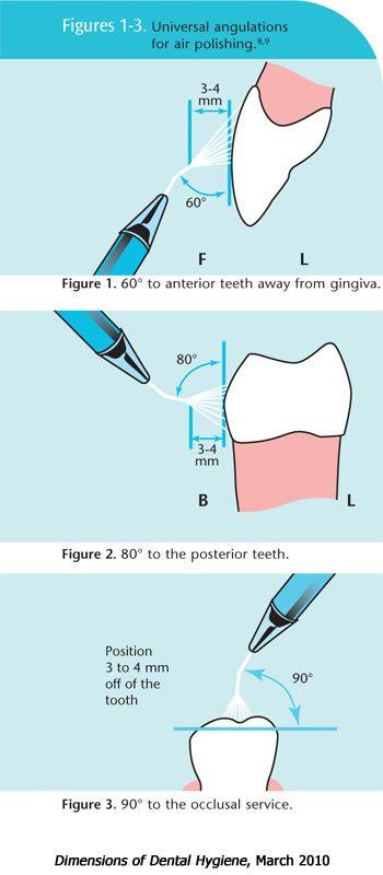 Dimensions of Dental Hygiene- Air Polishing