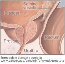 What is prostate cancer? #Livingwithprostateproblems