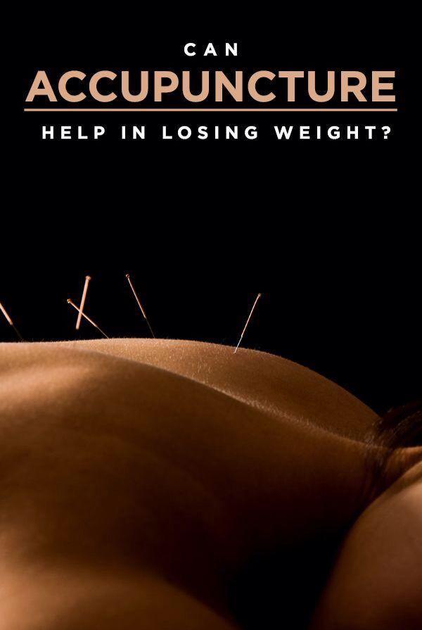 Czy akupunktura pomaga w odchudzaniu?  Gabinet Akupunktury prof Enji zaprasza na zabiegi.