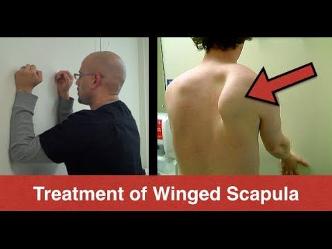 Atlanta Chiropractor - Winged Scapula Exercises (Serratus Anterior) - Personal Injury Doctor Atlanta  http://PremierHealthRehab.com  This condition is caused by an injury to the long thoracic nerve.  The nerve innervates the Serratus Anterior muscle which is responsible for maintaining the scapula attached to the rib cage.  When the muscle is weak, the scapula protrudes and it can cause discomfort and affect the range of motion of the shoulder.  http://www.youtube.com/watch?v=aL2N9ixQMFU