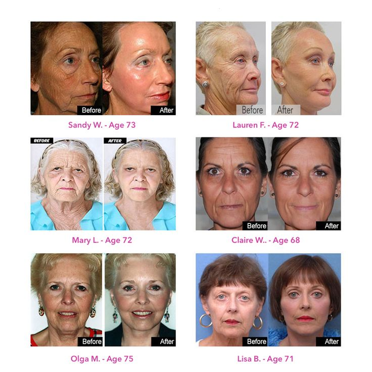 How to make your skin look 10+ years younger using two ...