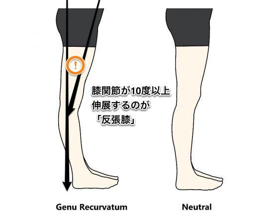 ふくらはぎが太くなる人のもう一つの理由とは? 前回もご参照ください。 「股関節の伸展がないので 足を底屈させるふくらはぎの筋肉を 使ってばかりで太くなる」 もうひとつの理由は・・・ ②反張膝(はんちょうひざ)あるいは膝過伸展ではありませんか? 反張膝や膝過伸展・・・聞いたことがありますか? 名前がわからなくても自分の脚は、このタイプだなあと感じている人は多いです。 定義としては 真上からまっすぐ線を引いた場合(矢
