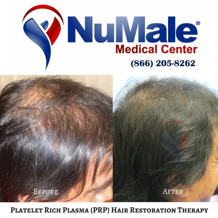 Platelet Rich Plasma (PRP) Hair Restoration Therapy. . Use Your Body's Own Plasma Fast Results Affordable and Cost Effective No Scarring  No Medications . Schedule Your Consultation  (866) 205-8262