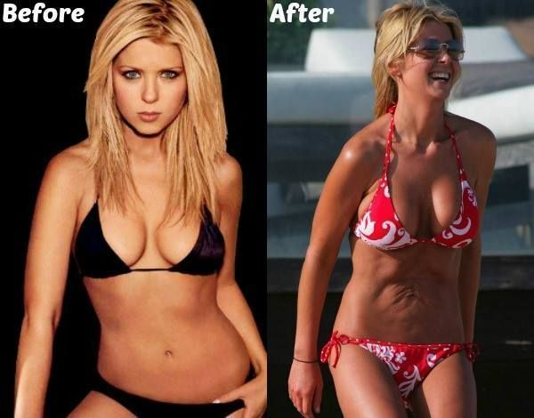 #celebrities #famous #Liposuction – 25 Famous Celebrities Before And After Lipos…