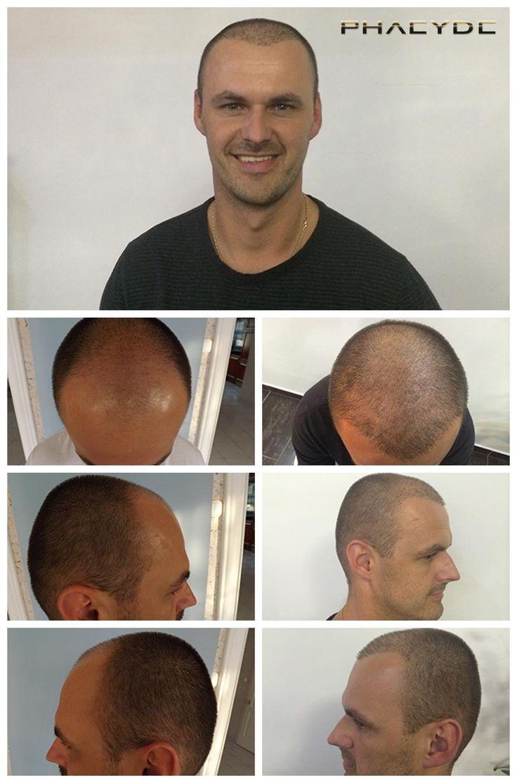 Leslie K. Hade håravfall i hans zoner 1,2,3 ovanför hans panna. Bilden visar resultatet av 7500 hår implantat, som genomfördes vid PHAEYDE kliniken på bara två dagar.  http://sv.phaeyde.com/har-implantation