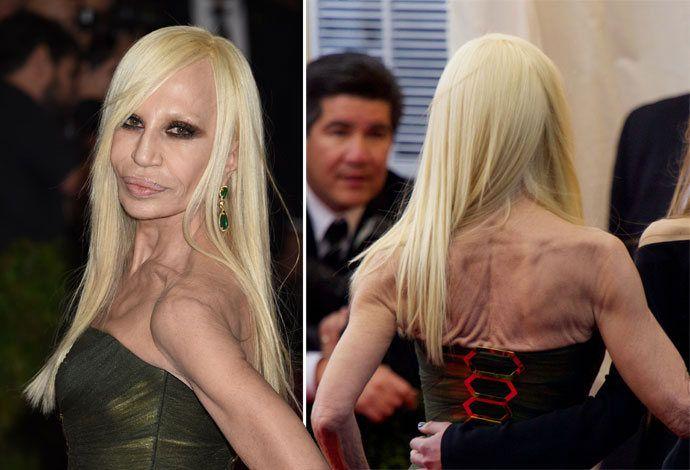 Донателла Версаче ужаснула своим видом