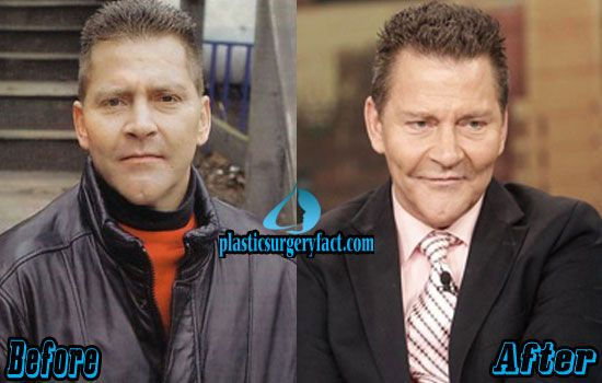 Scott Thorson Plastic Surgery Before and After | http://plasticsurgeryfact.com/scott-thorson-plastic-surgery-before-and-after-photos/