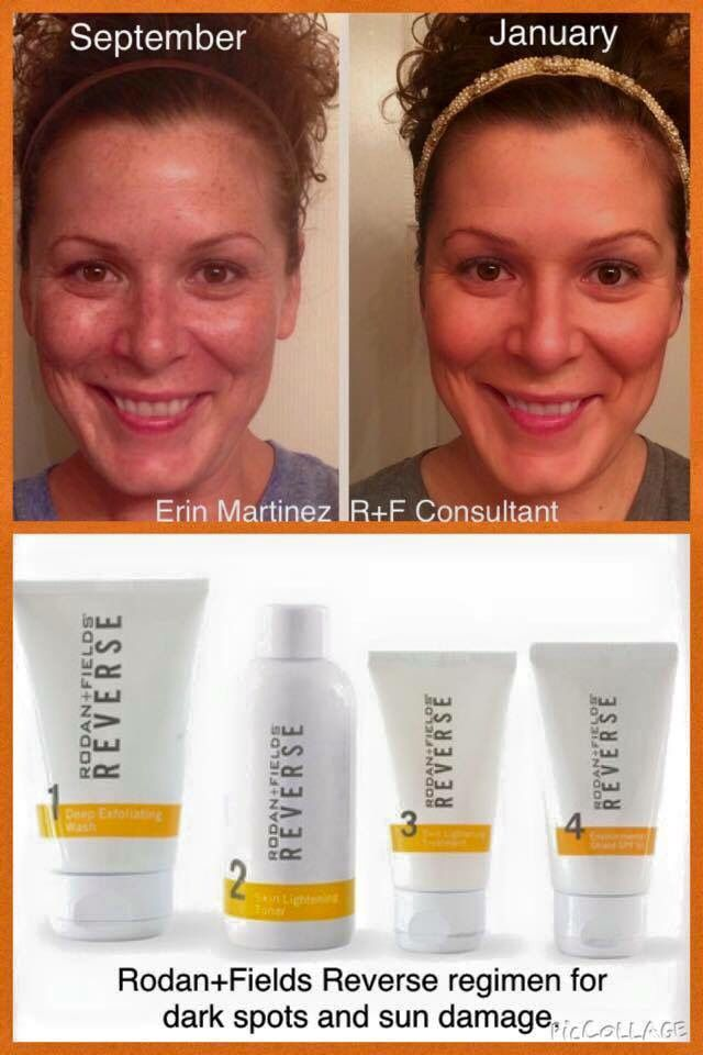 Rodan and Fields REVERSE regimen for brown spots & sun damage.