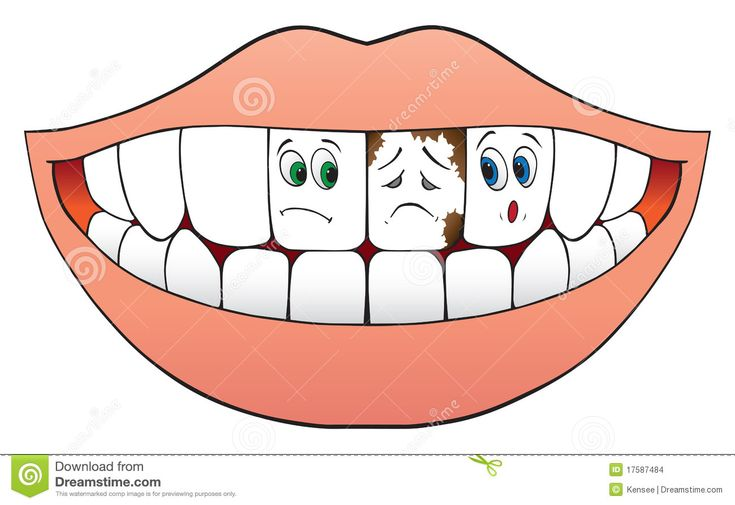 Dirty Teeth Clipart Dirty teeth clipart bad teeth