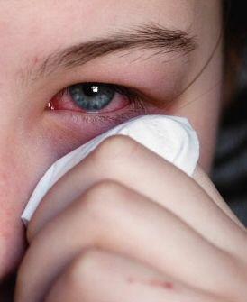 conjuntivitis - remedios caseros