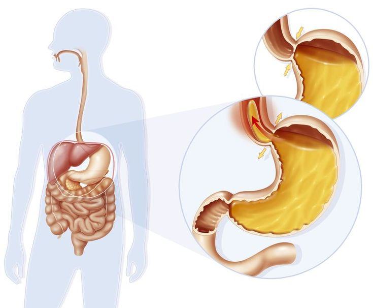 Achalasia Treatment by Natural Health Products