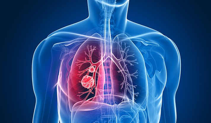 Armed with an $11 million grant from the National Cancer Institute (NCI), Yale Cancer Center and Smilow Cancer Hospital at Yale-New Haven will launch a new research program in non-small cell lung canc