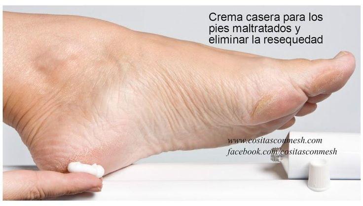 Cómo hacer crema casera para los pies secos o maltratados