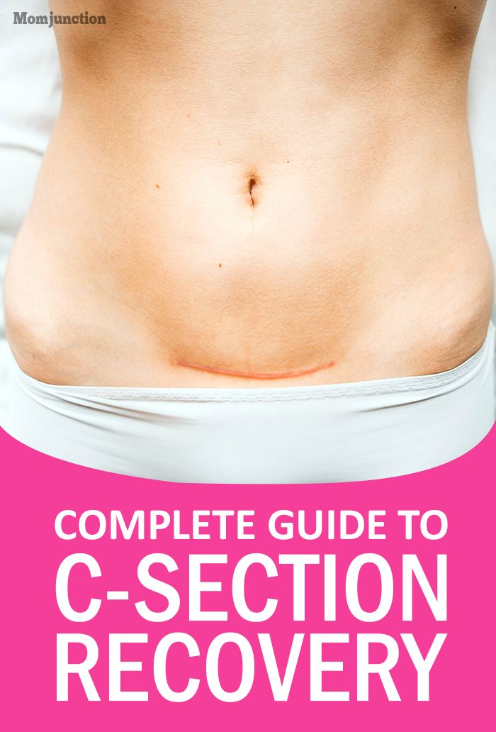 Your Complete Guide To C-Section Recovery
