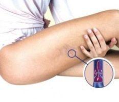 Żylaki nóg — naturalne leczenie - Krok do Zdrowia