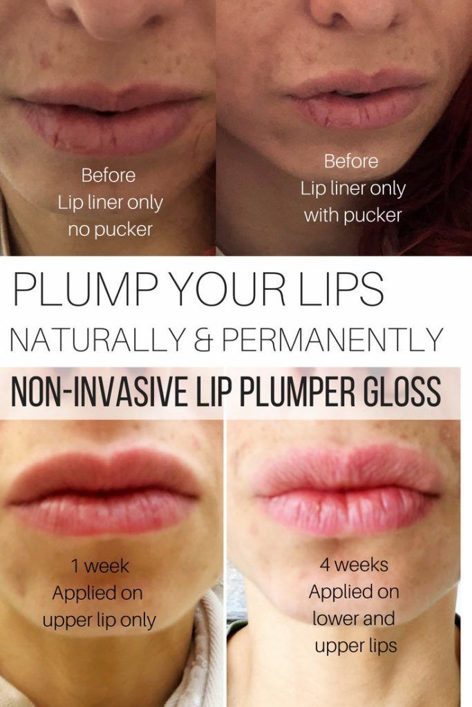 Plump your lips naturally and permanently, non-invasive lip