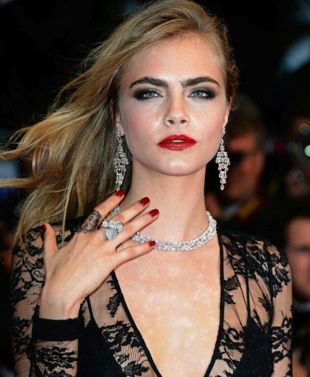 Cara Delevingne, psoriasis scars and all - Way to go!
