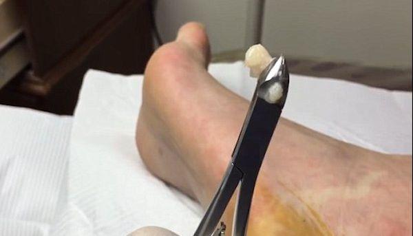 Canadauence TV: Cuidado! Cenas fortes, médico remove verruga enorm...