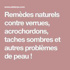 Remèdes naturels contre verrues, acrochordons, taches sombres et autres problèmes de peau !