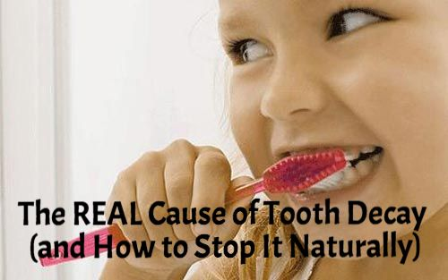 The REAL Cause of Tooth Decay and How to Stop it Naturally!