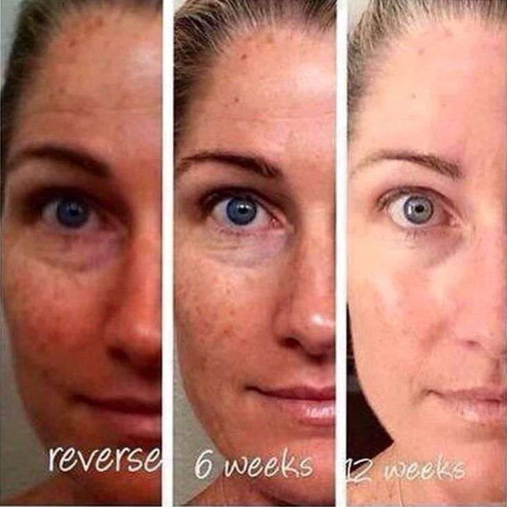 how to become a rodan and fields consultant canada