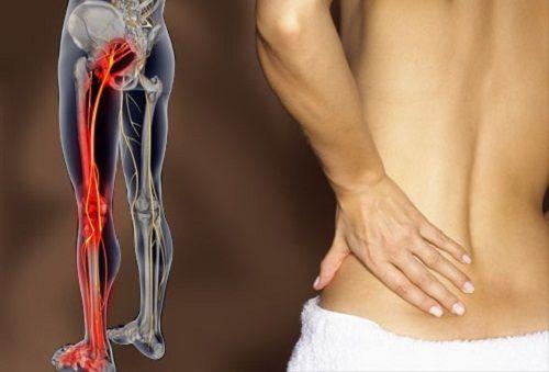 Le nerf sciatique est un grand nerf qui s'étend de la partie inférieure du dos jusqu'à la jambe.