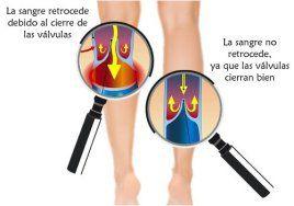 ¿Qué es una úlcera venosa o varicosa de la piel? .  Una úlcera venosa o varicosa es un tipo de herida que se desarrolla en la piel. Es una herida superficial que se produce cuando las venas de las piernas no devuelven la sangre de regreso hacia el corazón de la manera que deberían hacerlo. Esto se denomina insuficiencia venosa.