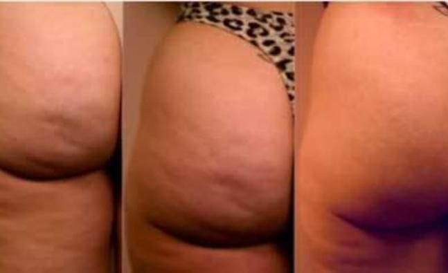 Home remedies to beat cellulite