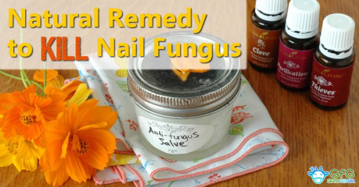 Natural Remedy to Kill Nail Fungus - Grass Fed Girl, LLC  20 drops clove oil  20D purification oil( young living)  20D thieves oil  1/2 C coconut oil/ mix all   rub generously on nails before bed.