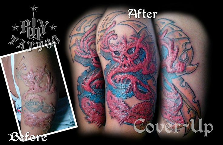 All About Can You Tattoo Over Scars Scars And Spots Invicible
