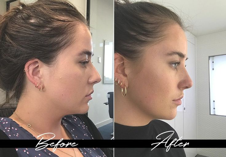 Heres why you should consider a nonsurgical nose job