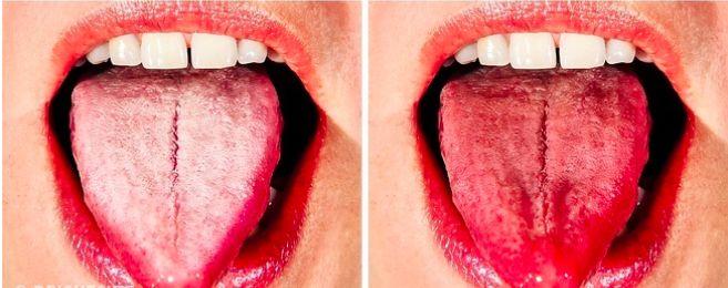 """Produkty vitální činnosti Vašeho těla jsou odvozeny nejen z moči, výkalů a potu, ale také z jazyka. Pravidelným odstraňováním tohoto jedu z jazyka, pomáháte """"vyčistit"""" a provádět konstantní detoxikaci těla. Čištění jazyka zvyšuje citlivost chuťových pohárků, osvěžuje dech a také zabraňuje vzniku kazů, plaku a onemocnění dásní. Proč je Váš jazyk bílý? [hana-code-insert name='google' /]Bílý …"""