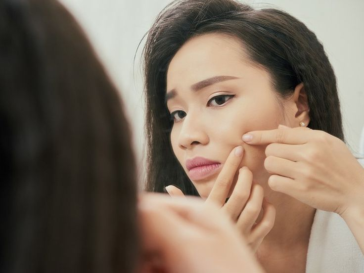 Is Popping Your Pimples Really That Bad for Your Skin?