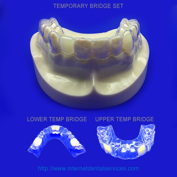 42 best products diy dental impression kit images on pinterest the temporary bridge is an invisible plastic retainer with false teeth attached to it so you solutioingenieria Images