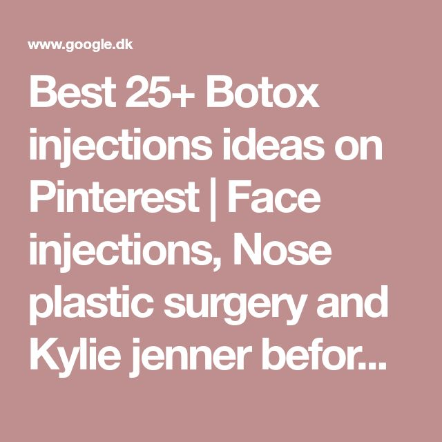 Best 25+ Botox injections ideas on Pinterest | Face injections, Nose plastic surgery and Kylie jenner before after