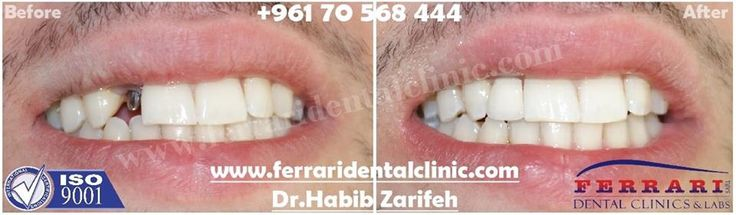 The number one Dental implants dentist and clinic in Lebanon by Ferrari dental clinic ISO 9001 Hollywood smile Beirut. Call us now: +96170567444 Http://www.dentalimplantslebanon.com #hollywoodsmile #veneers #lumineers #dentist #dentalclinic #Beirut #Lebanon #dentalimplants  #cosmeticdentistry #HollywoodsmileLebanon #Hollywoodsmilebeirut #veneersLebanon #VeneersBeirut #cosmeticdentistryLebanon #CosmeticdentistryBeirut #DentistLebanon #DentistBeirut #dentalimplantsLebanon #DentalimplantsBeirut