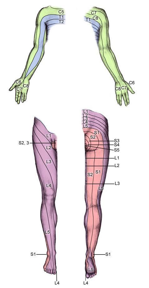 Dermatomes (Extremities) | Neurology | Pinterest | Articles