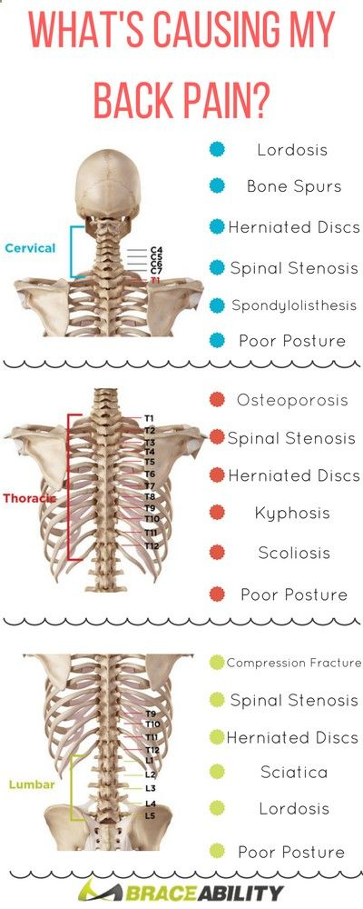 how to tell where pain in lower back is from