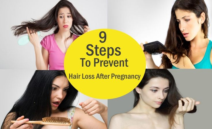 9 Feel Better Steps To Prevent Hair Loss After Pregnancy