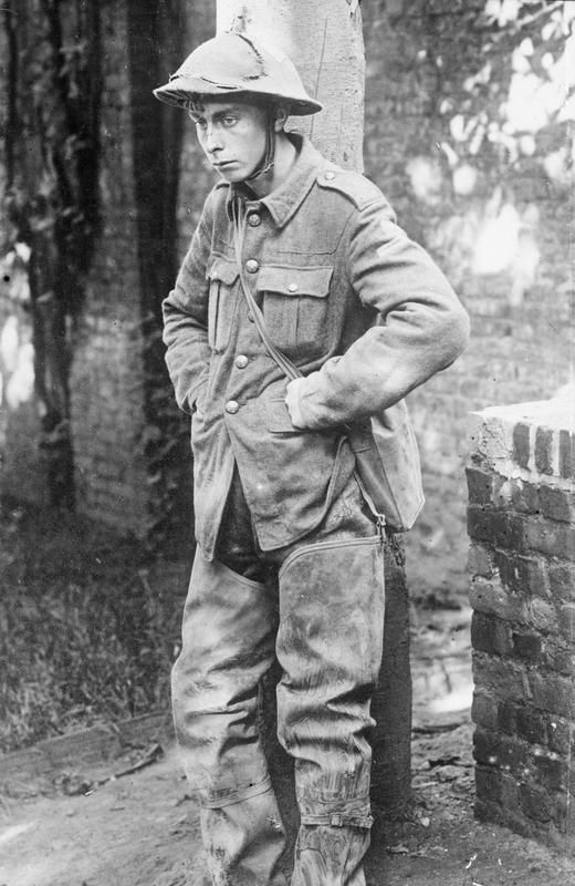 A shell-shocked British soldier captured by the Germans during WW1, Shell shock was a common cause of crippling injury, usually without any physical trauma. Shell-shocked troops suffered from the effect of blast on the central nervous system experiencing severe disorientation, deafness, emetic syndrome, trembling, and often inability to stand.