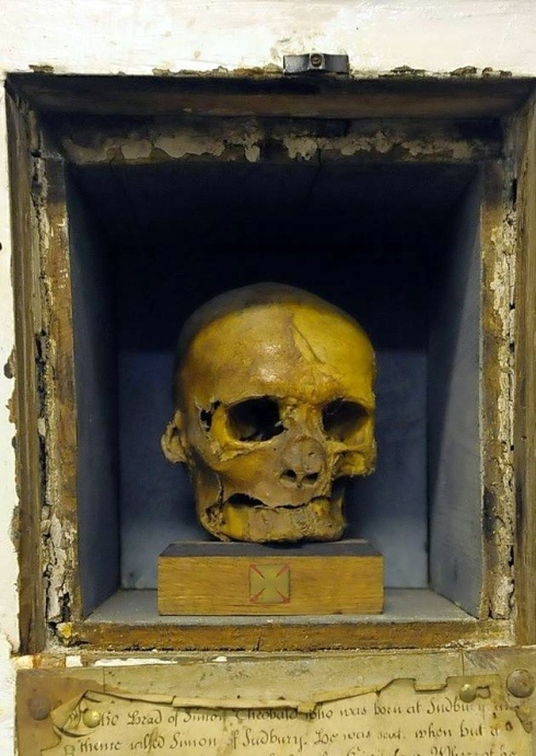 Skull of Simon of Sudbury, who met a grisly end when insurgents stormed the Tower of London during the Peasants' Revolt of 1381. They dragged him from his chamber to Tower Hill, struck off his head and placed it on a spike on Tower Bridge.