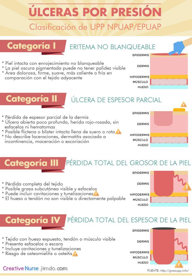 Ulceras por Presion para enfermeria http://creativenurse.jimdo.com/galerias/infografías/