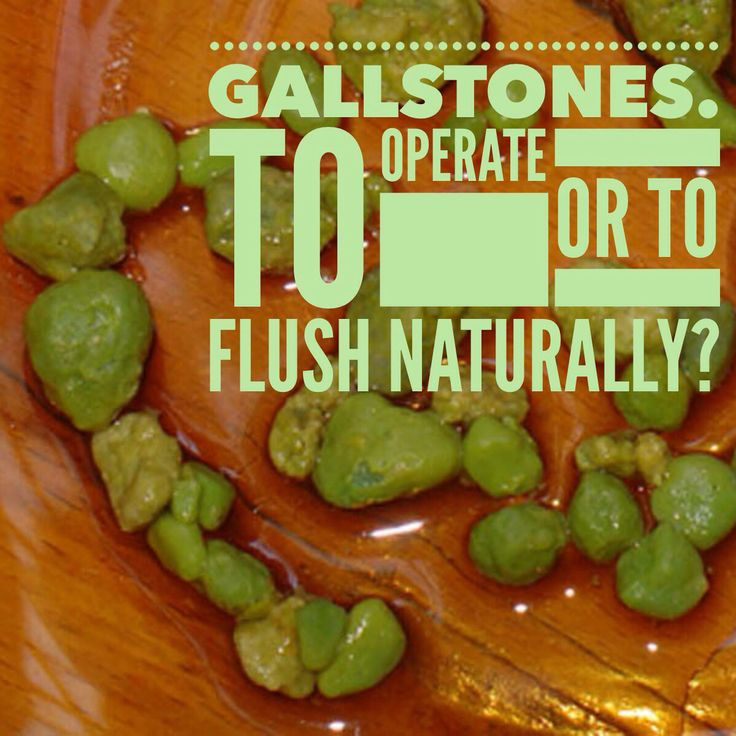 14 Best Dern You Gallstones Images On Pinterest Healthy