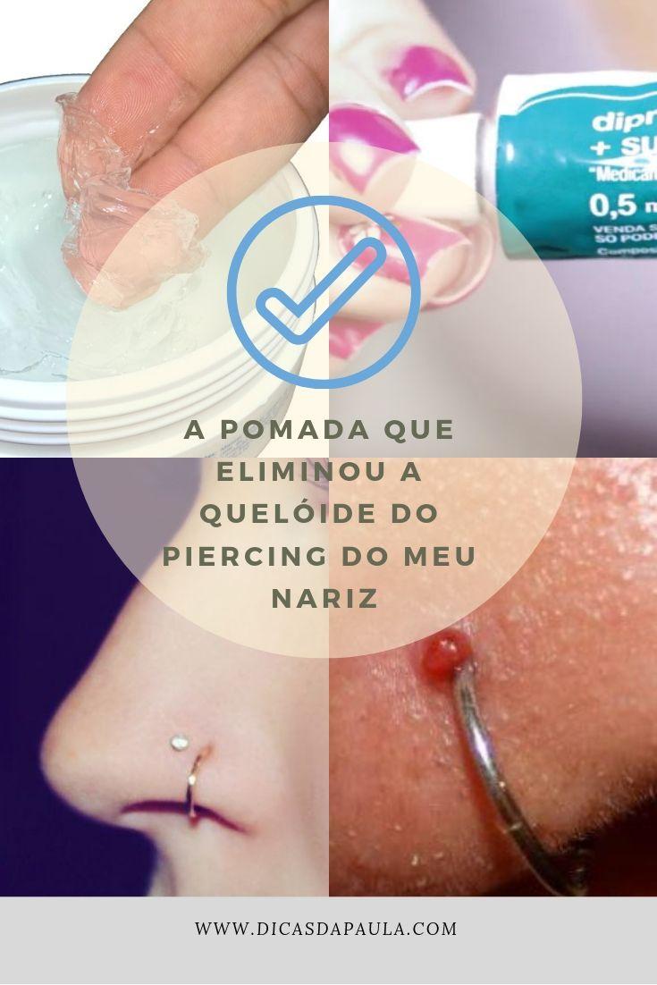 pomada para queloide piercing