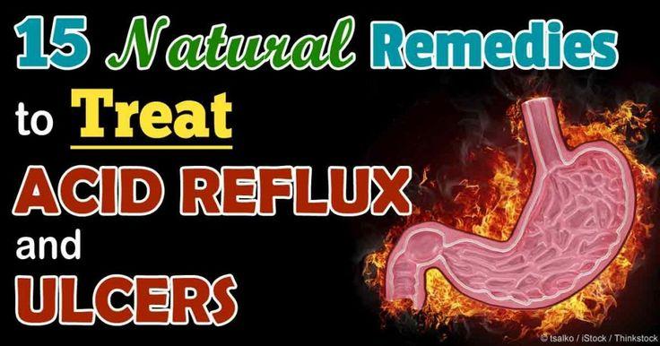 15 natuurlijke remedies voor zure reflux en maagzweren
