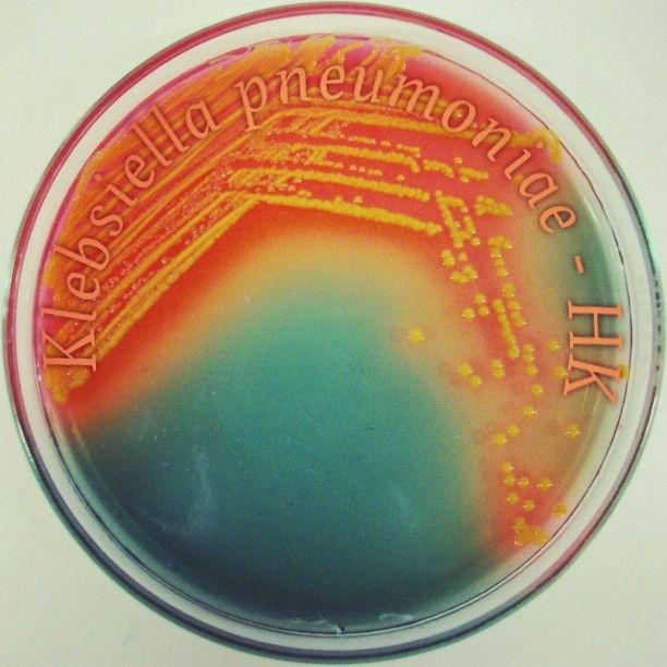Klebsiella pneumoniae - Hektoen Enteric Agar