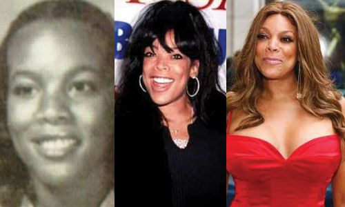 Wendy Williams Plastic Surgery Before and After Pictures 2015