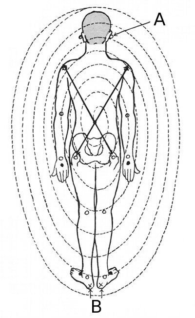 17 best ideas about human pressure points on pinterest