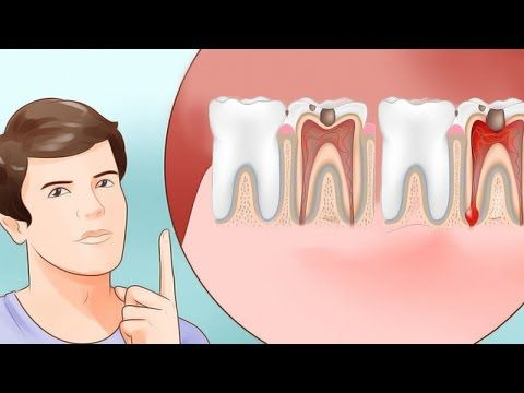 Kill Tooth Pain Nerve In 3 Seconds Permanently With This Tooth ache remedy - YouTube